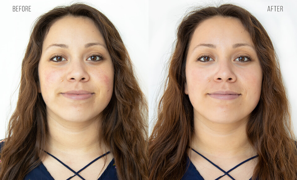 Before and after of young woman.