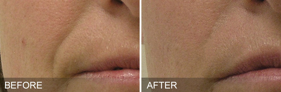 Before and after of mouth and nose area.