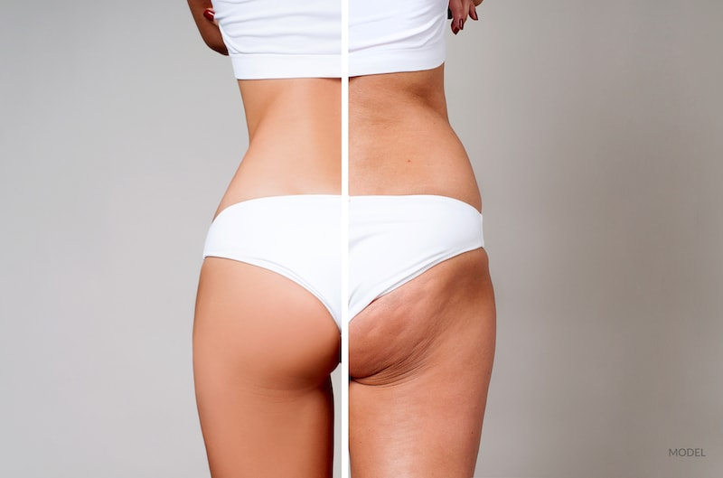 Woman before and after her cellulite treatment.